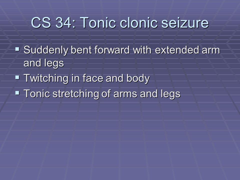 CS 34: Tonic clonic seizure