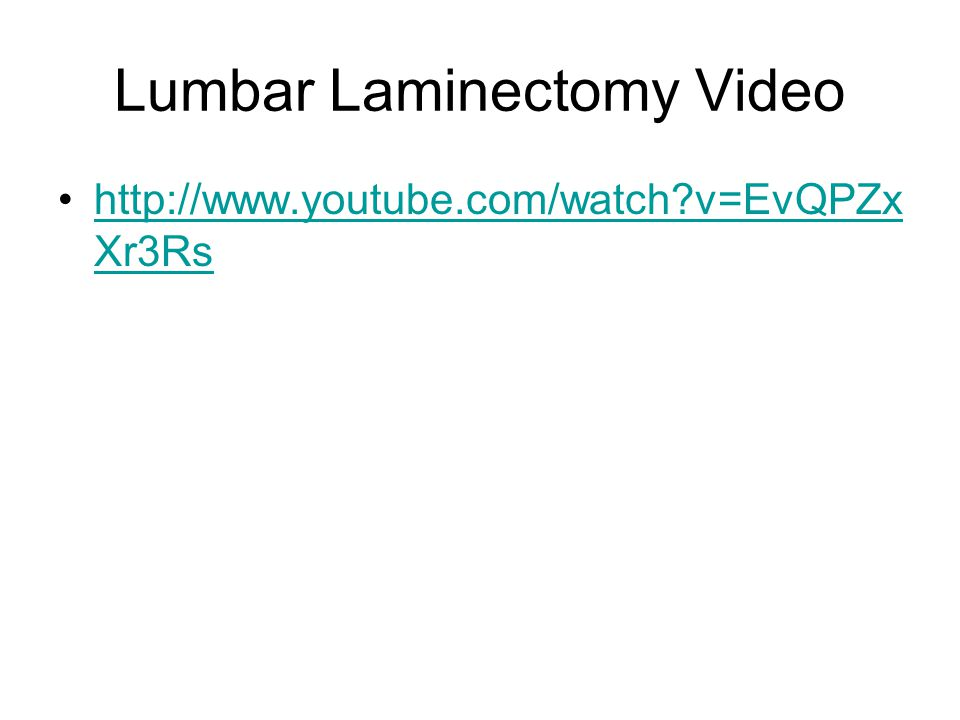 Lumbar Laminectomy Video