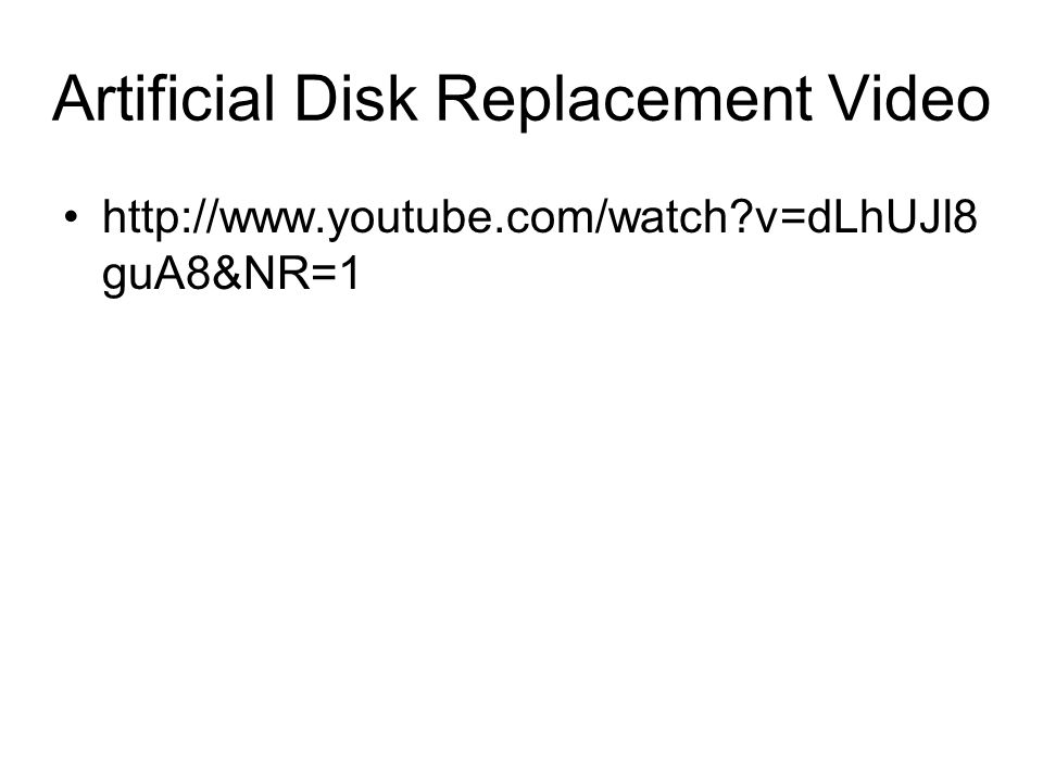 Artificial Disk Replacement Video