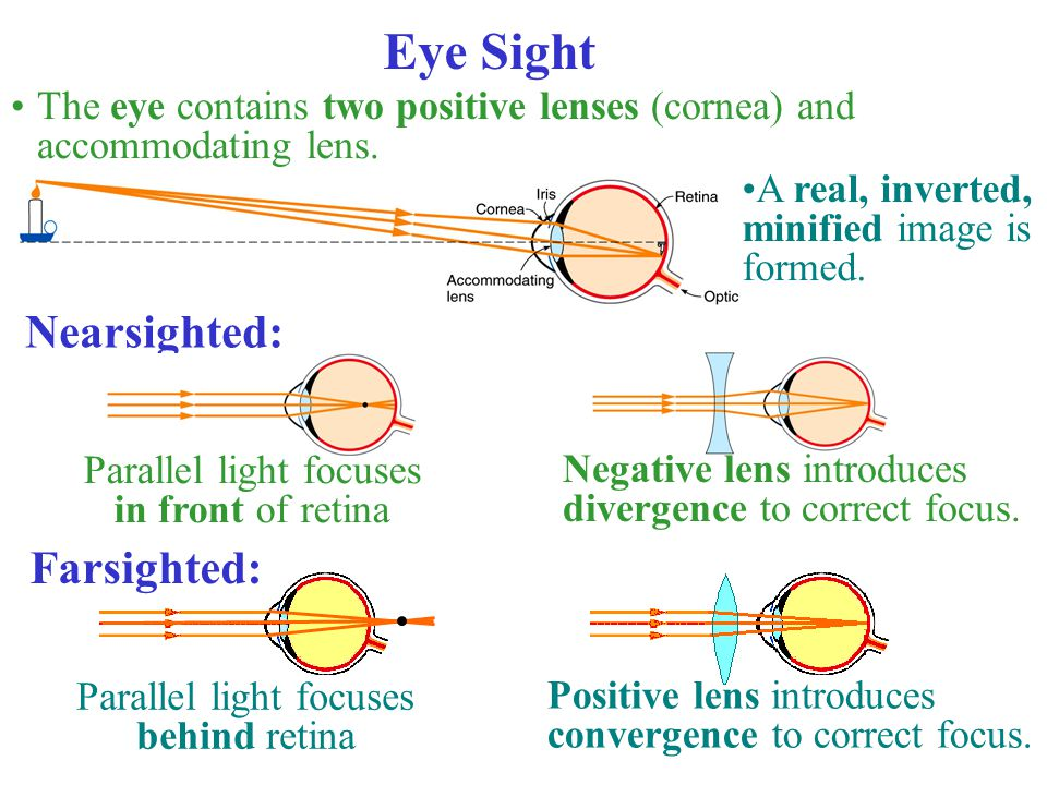 Eye Sight Nearsighted: Farsighted: