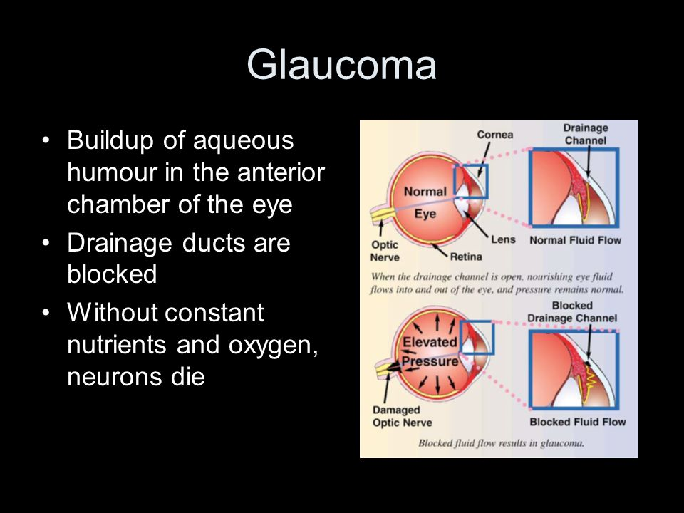 Glaucoma Buildup of aqueous humour in the anterior chamber of the eye