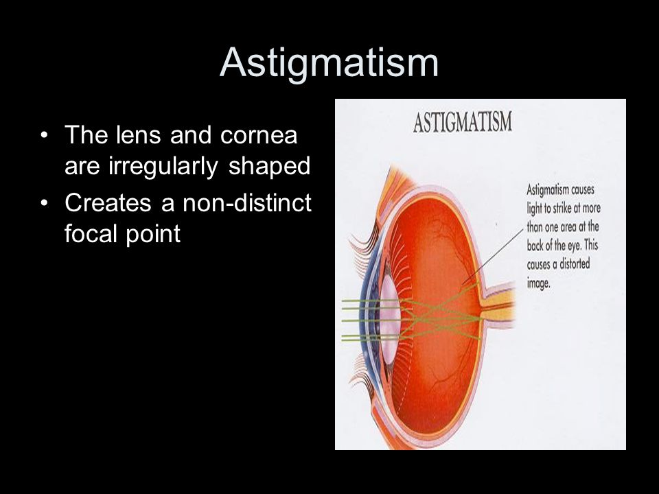 Astigmatism The lens and cornea are irregularly shaped