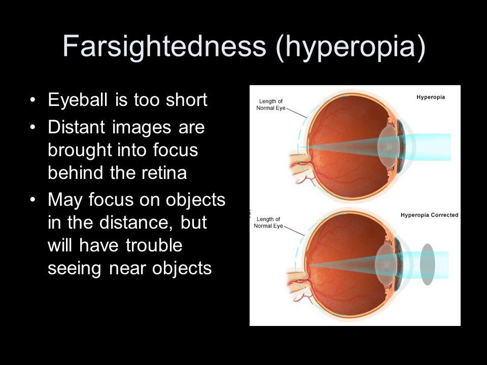 Farsightedness (hyperopia)