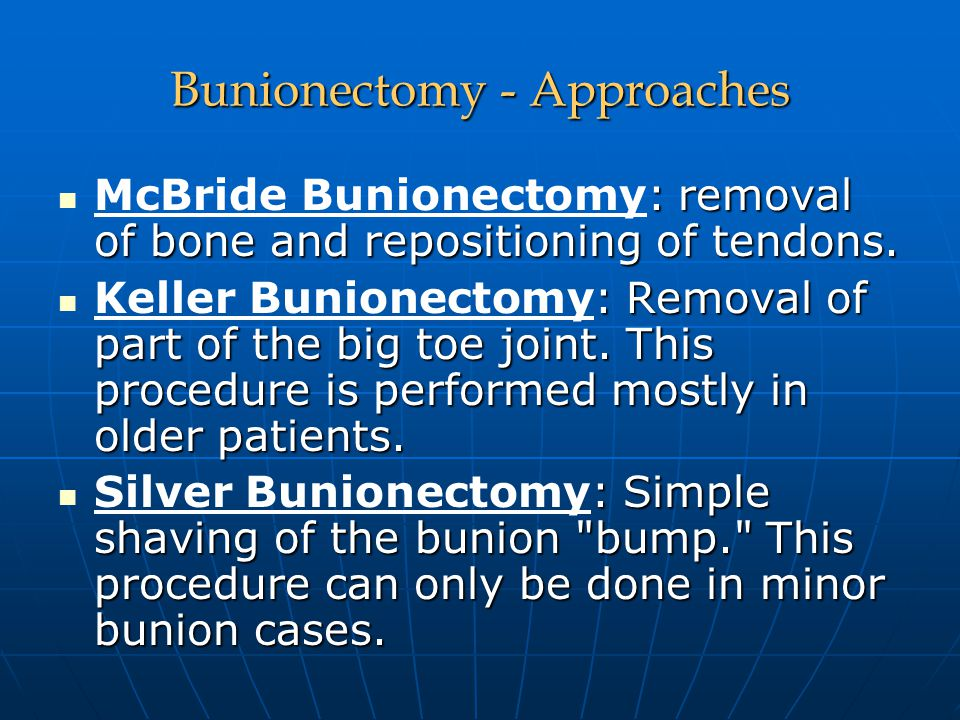 Bunionectomy - Approaches