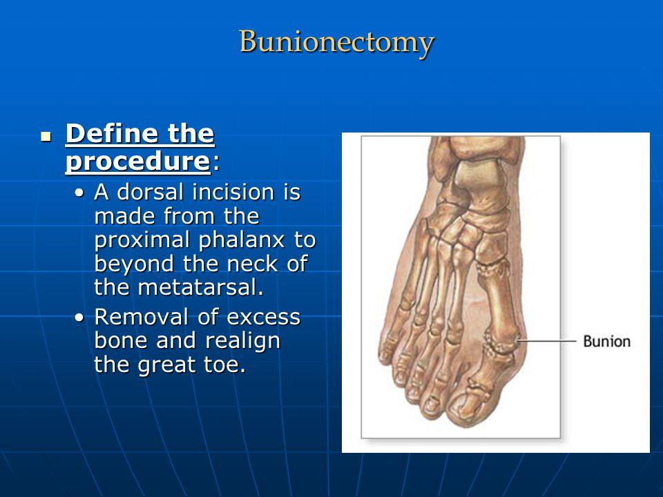 Bunionectomy Define the procedure:
