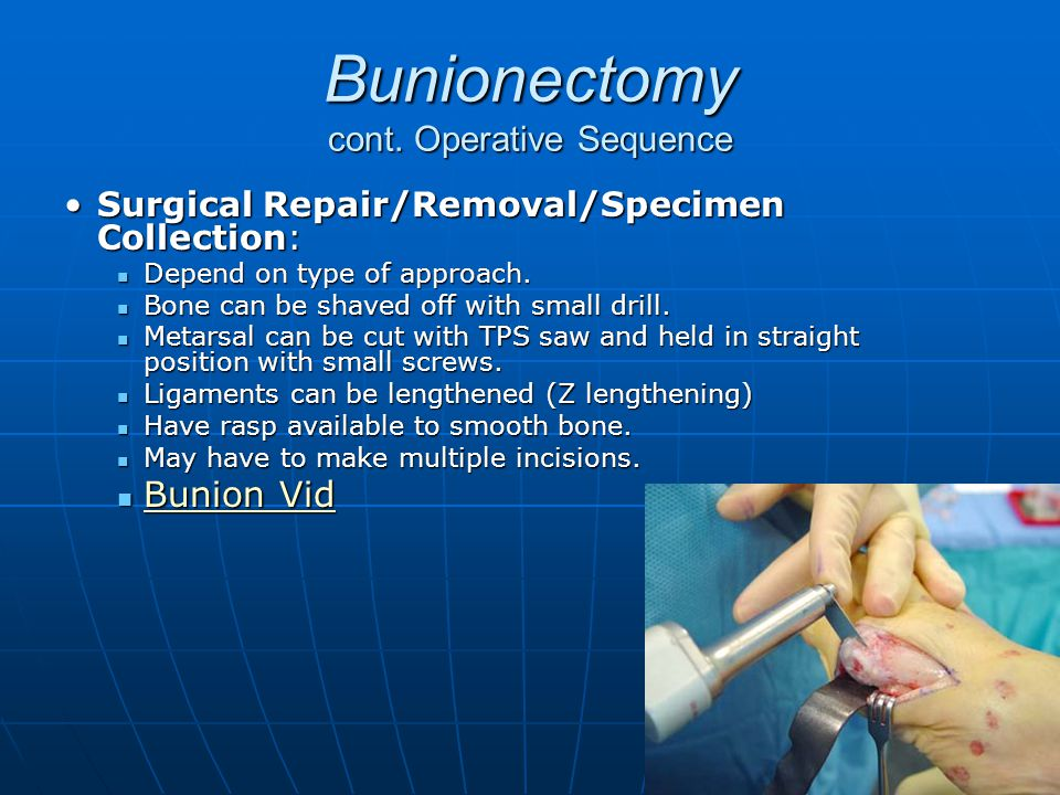 Bunionectomy cont. Operative Sequence