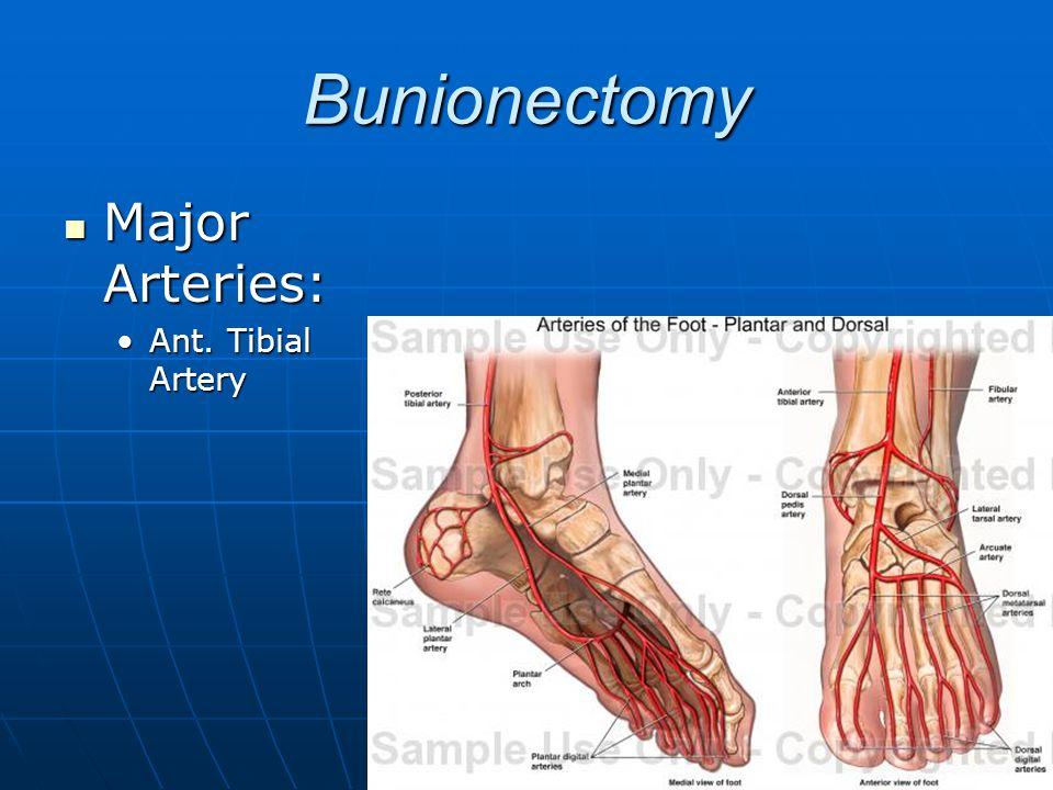 Bunionectomy Major Arteries: Ant. Tibial Artery