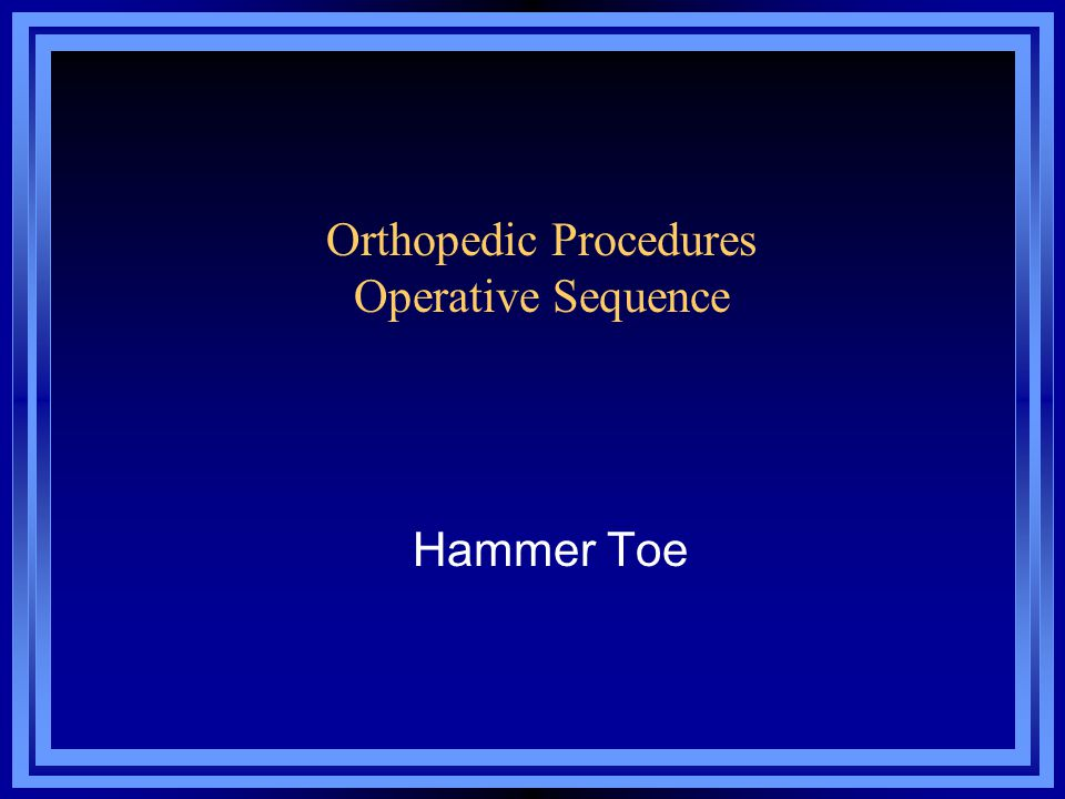 Orthopedic Procedures Operative Sequence