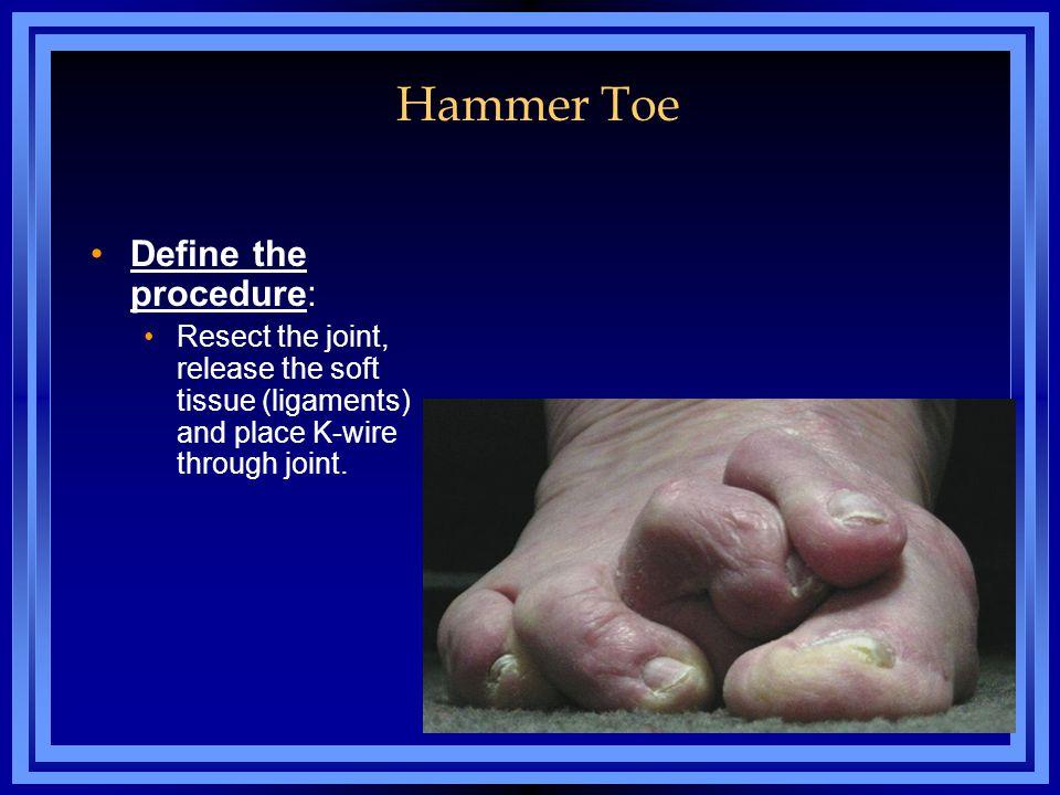 Hammer Toe Define the procedure: