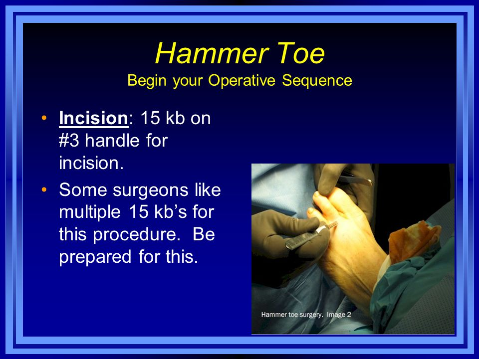 Hammer Toe Begin your Operative Sequence