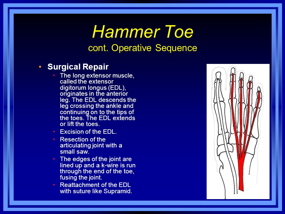 Hammer Toe cont. Operative Sequence