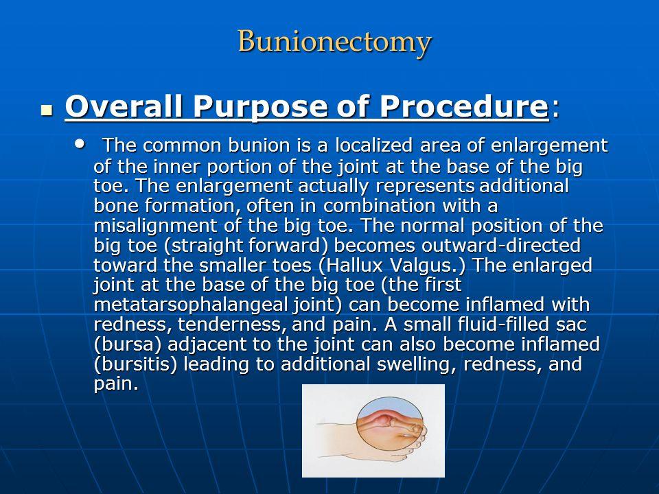 Bunionectomy Overall Purpose of Procedure: