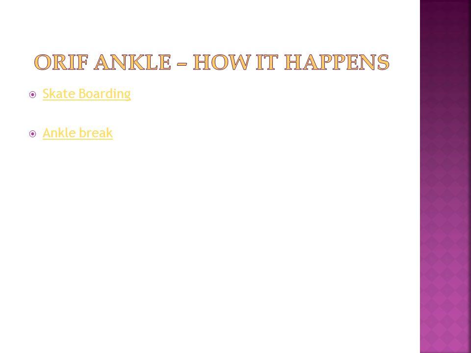 ORIF Ankle – How it happens