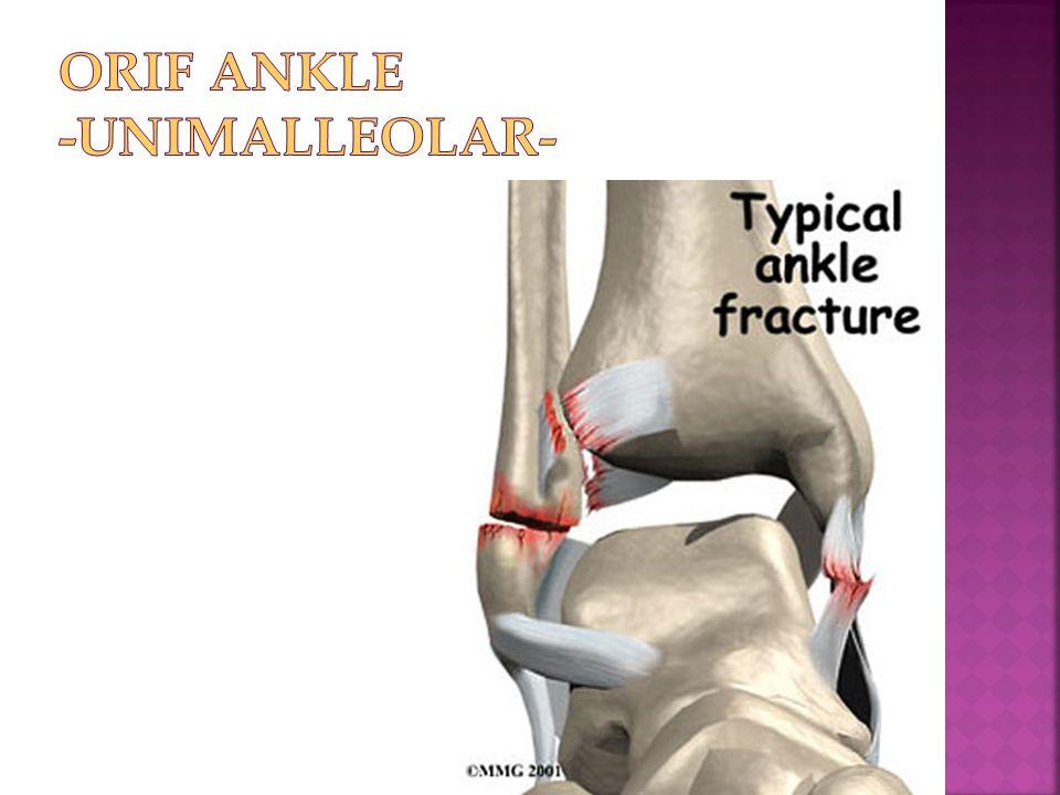ORIF Ankle -Unimalleolar-