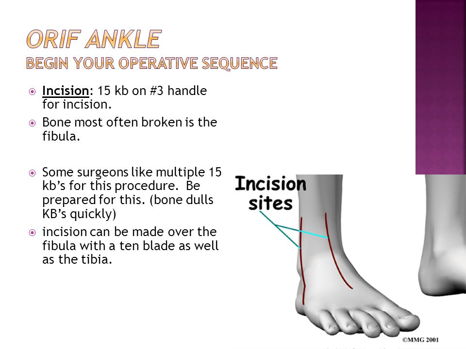 ORIF Ankle Begin your Operative Sequence