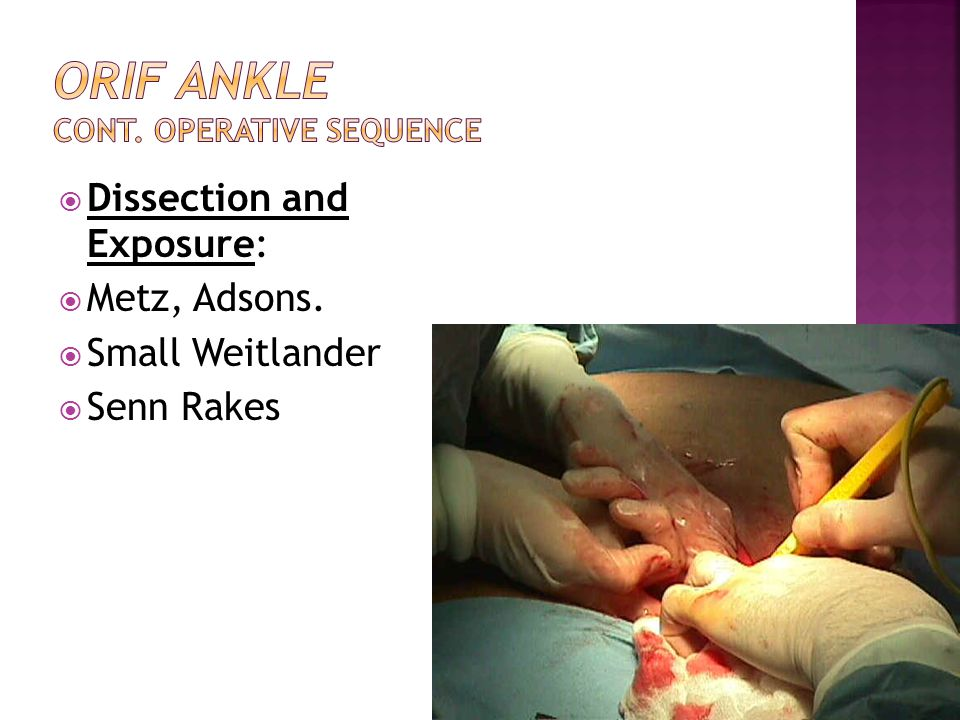 ORIF Ankle cont. Operative Sequence