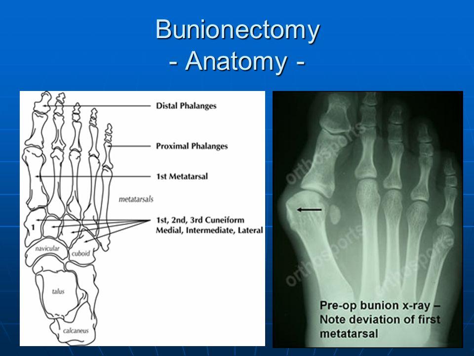 Bunionectomy - Anatomy -