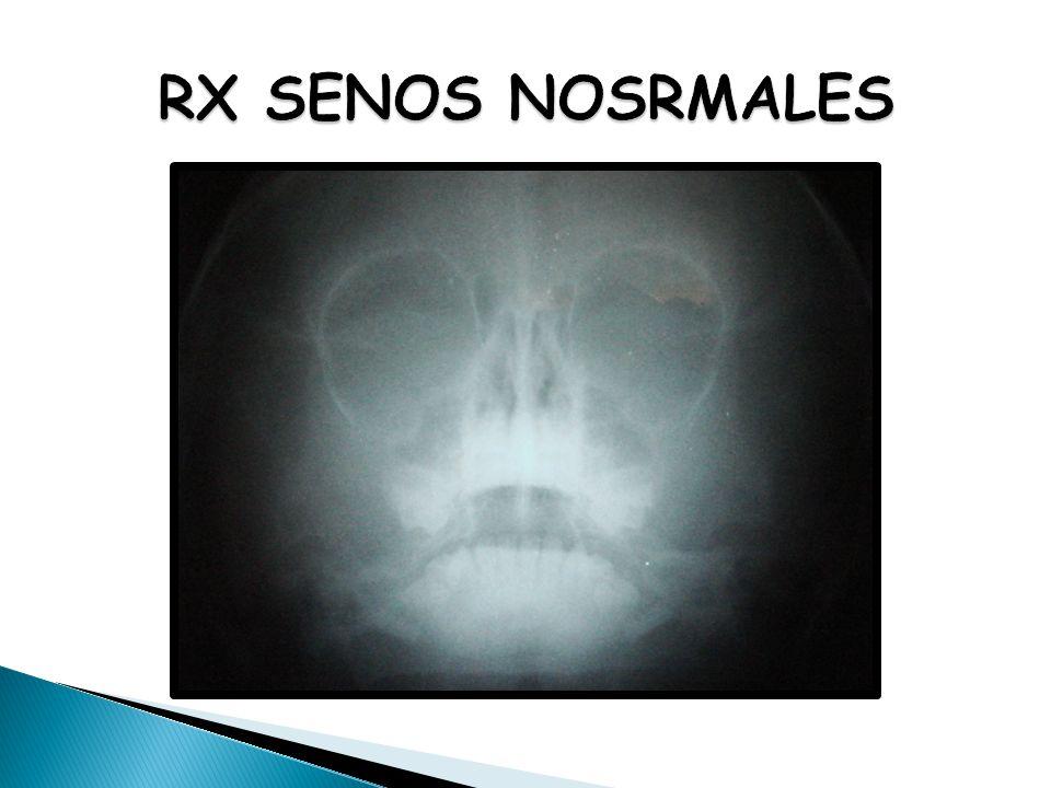 RX SENOS NOSRMALES