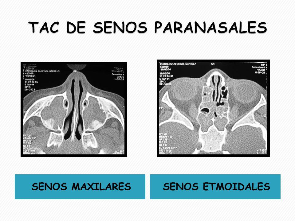 TAC DE SENOS PARANASALES