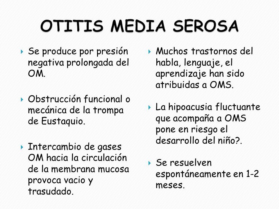 OTITIS MEDIA SEROSA Se produce por presión negativa prolongada del OM.