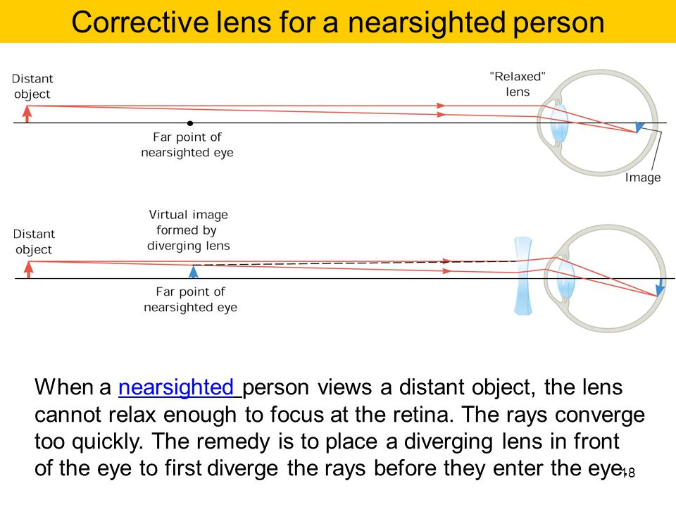 Corrective lens for a nearsighted person