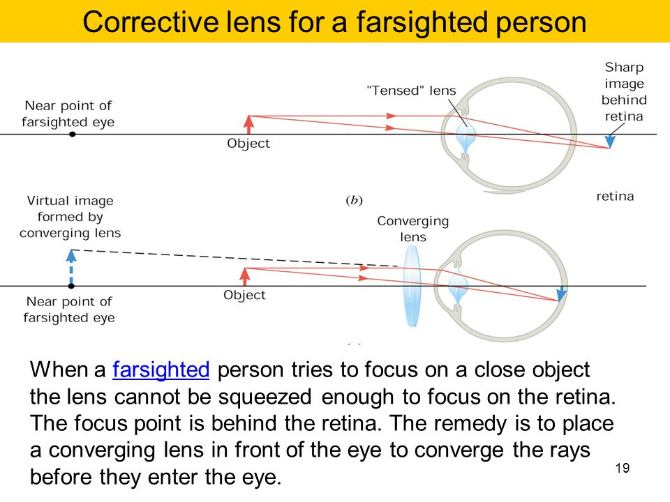 Corrective lens for a farsighted person