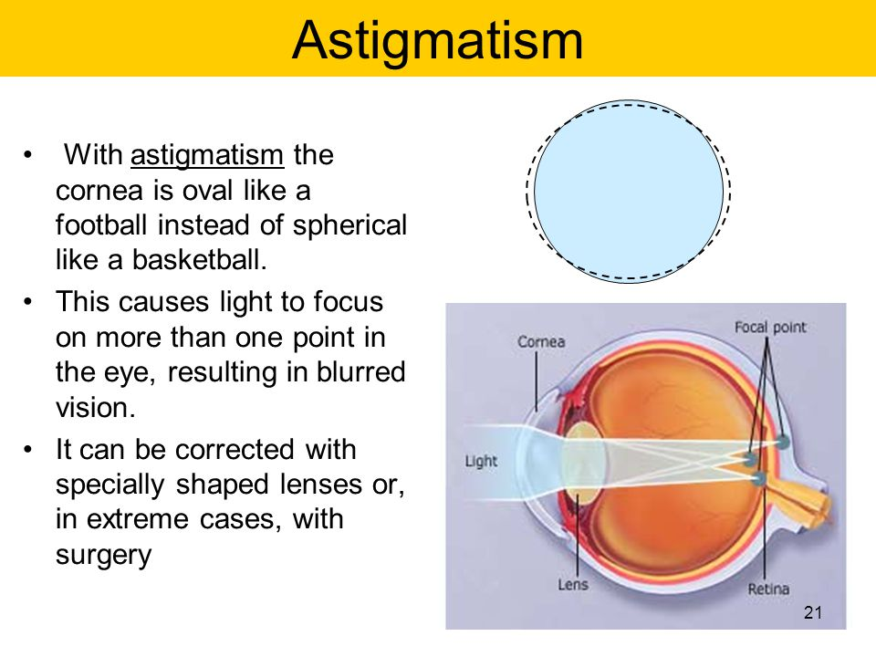 Astigmatism With astigmatism the cornea is oval like a football instead of spherical like a basketball.