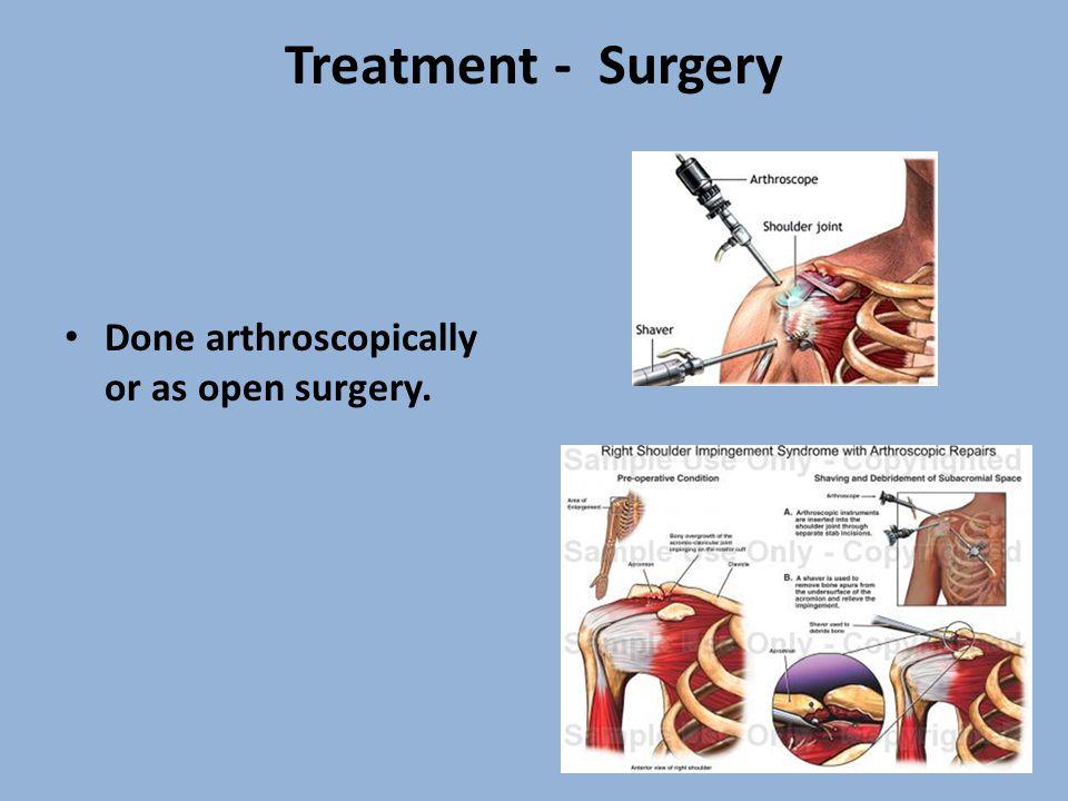 Treatment - Surgery Done arthroscopically or as open surgery.