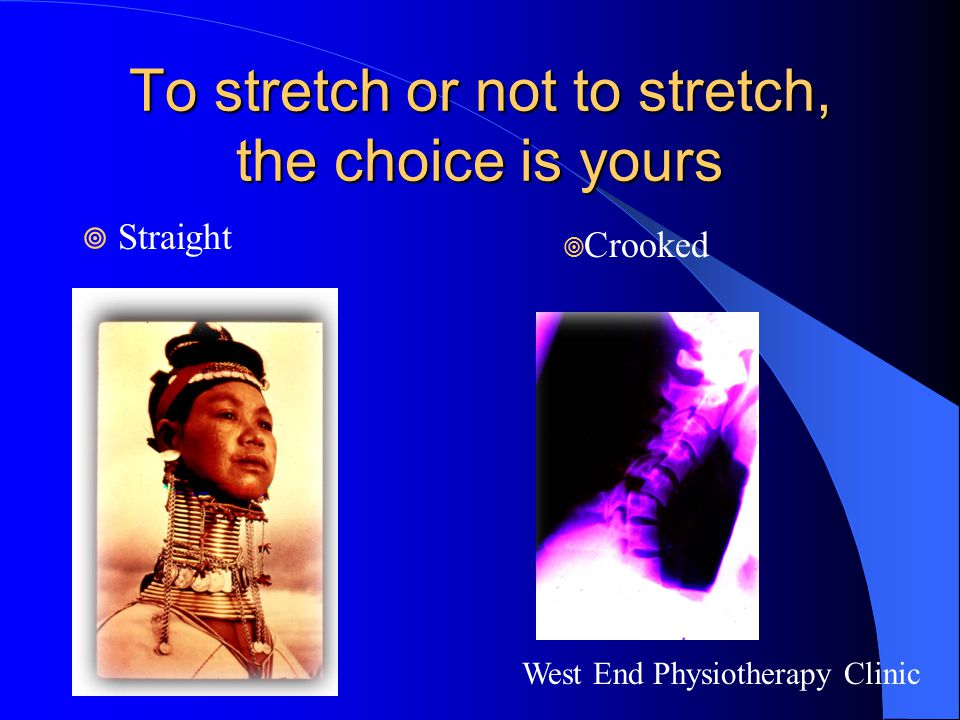 To stretch or not to stretch, the choice is yours