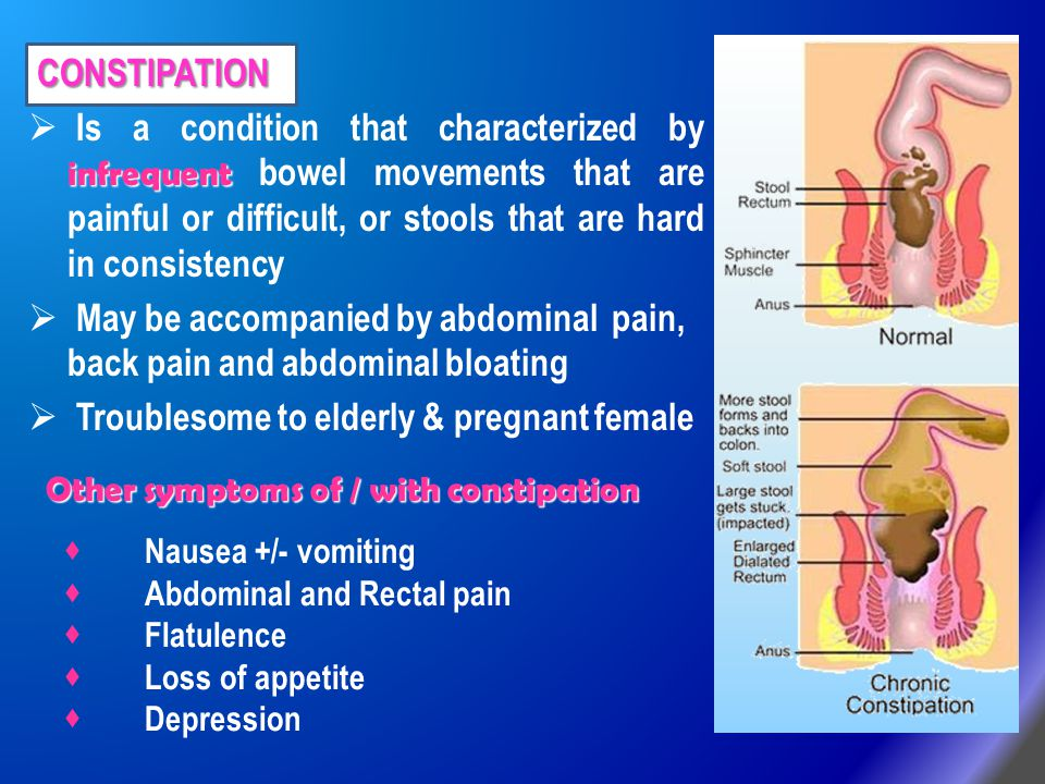 constipation in pregnancy causing pain dating