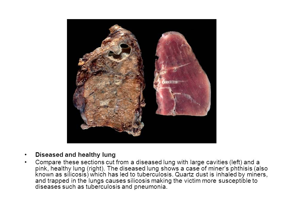 Diseased and healthy lung