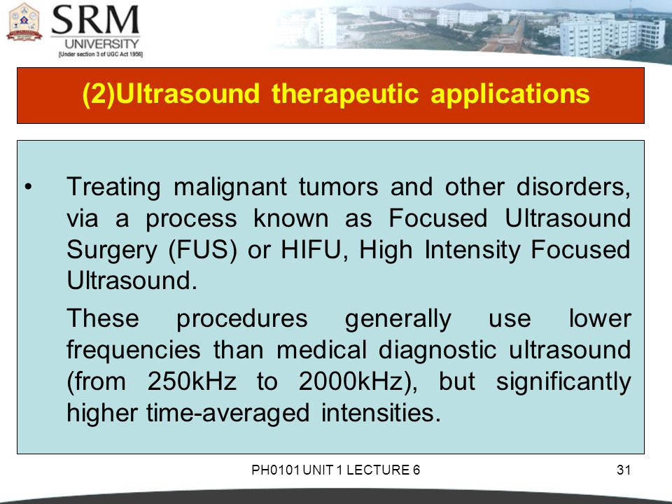 (2)Ultrasound therapeutic applications