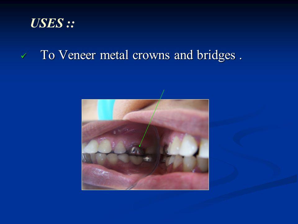 USES :: To Veneer metal crowns and bridges .