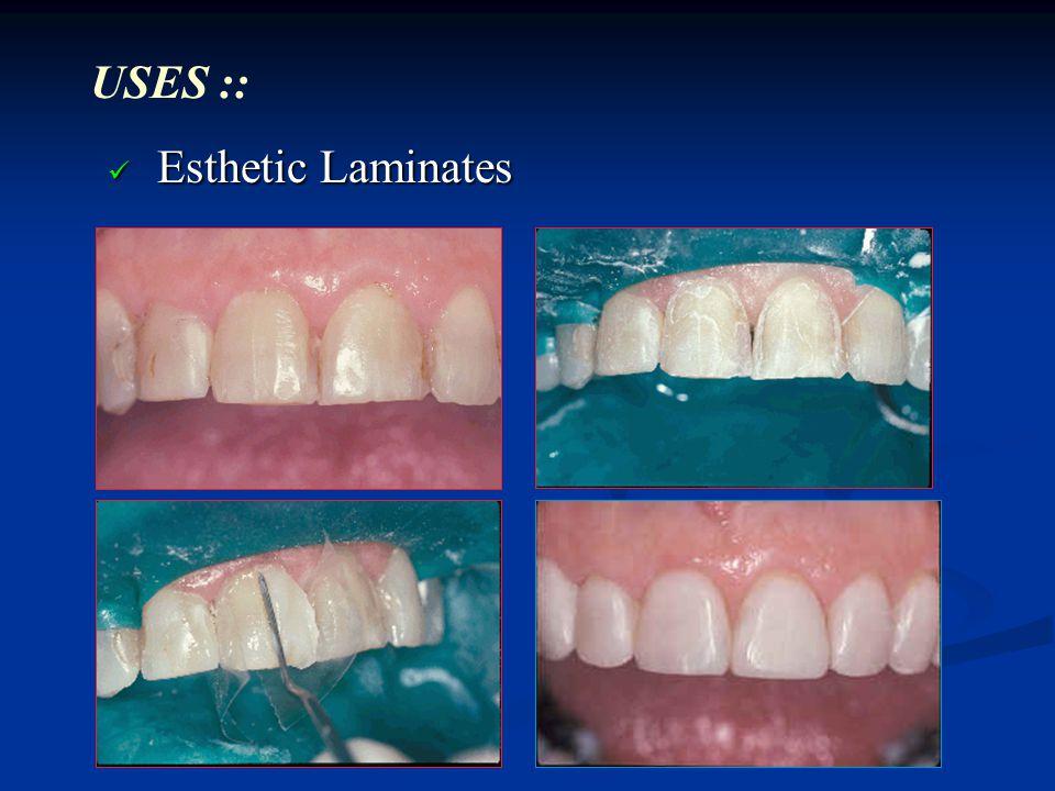 USES :: Esthetic Laminates