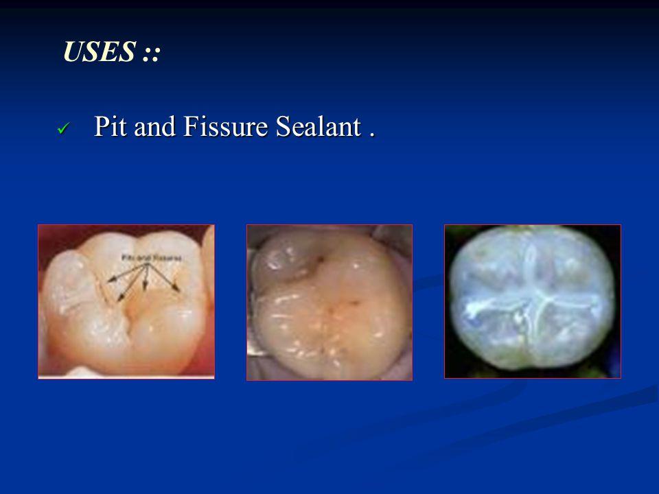 Restorative Resins Ppt Video Online Download