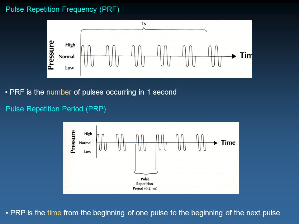Pulse Repetition Frequency (PRF)