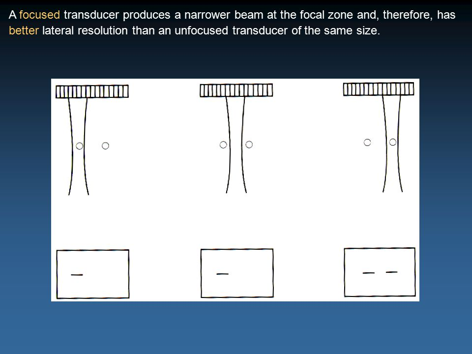 A focused transducer produces a narrower beam at the focal zone and, therefore, has