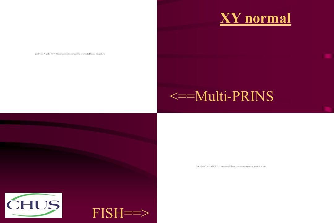 XY normal <==Multi-PRINS FISH==>