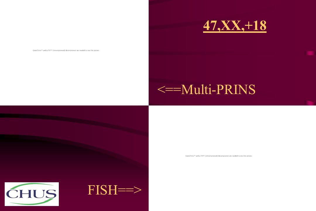 47,XX,+18 <==Multi-PRINS FISH==>