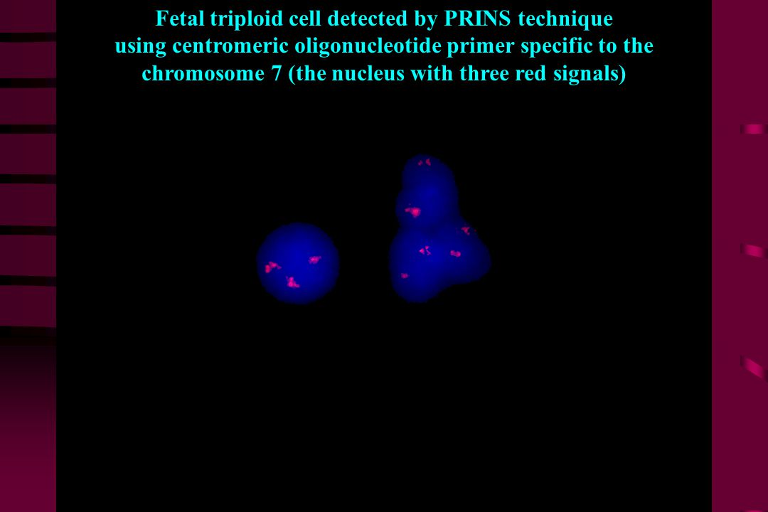 PRINS (primer centromeric oligonucleotide 8 Fetal cell with triploidy