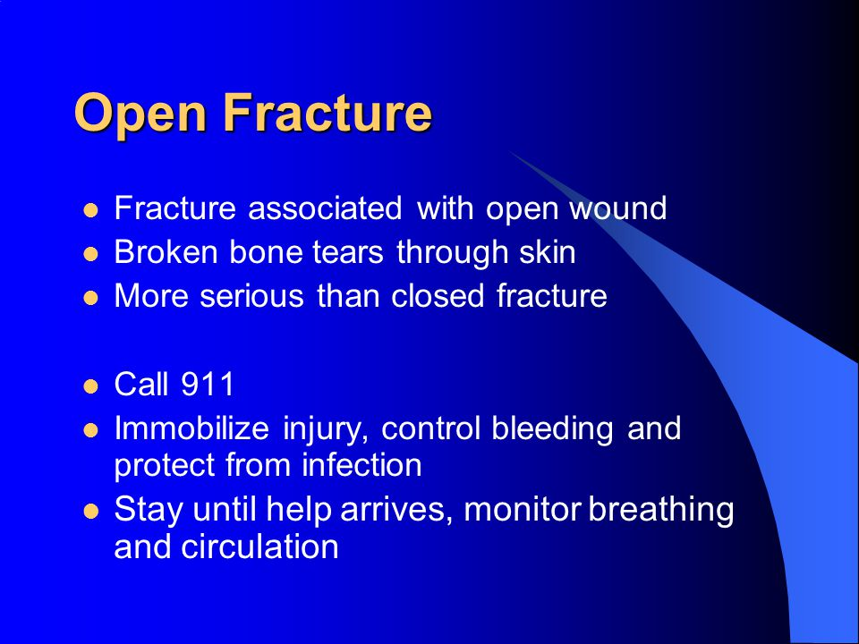Open Fracture Fracture associated with open wound. Broken bone tears through skin. More serious than closed fracture.