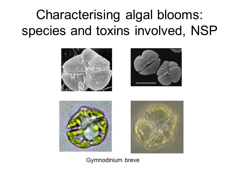 Characterising algal blooms: species and toxins involved, NSP