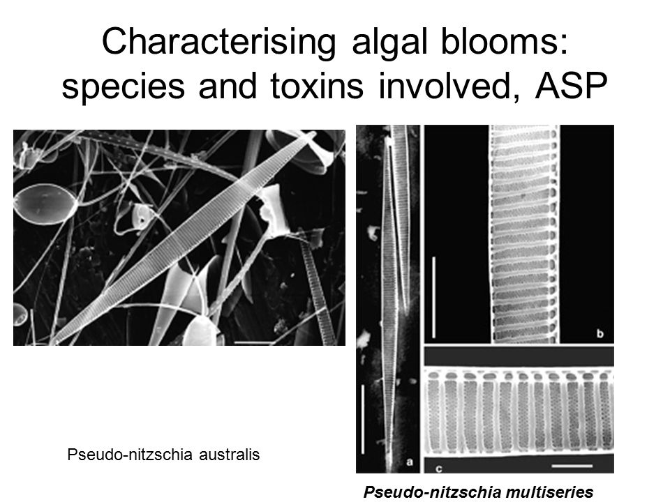 Characterising algal blooms: species and toxins involved, ASP