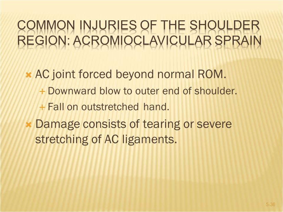 COMMON INJURIES OF THE SHOULDER REGION: Acromioclavicular Sprain