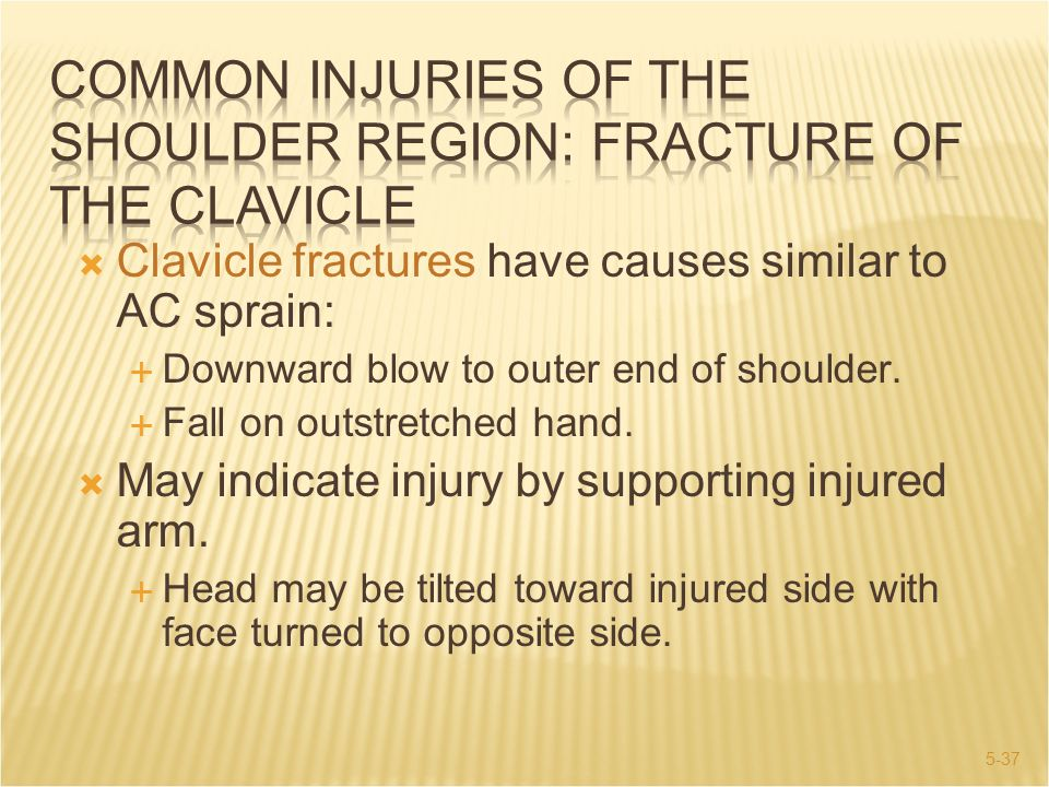 COMMON INJURIES OF THE SHOULDER REGION: Fracture of The Clavicle