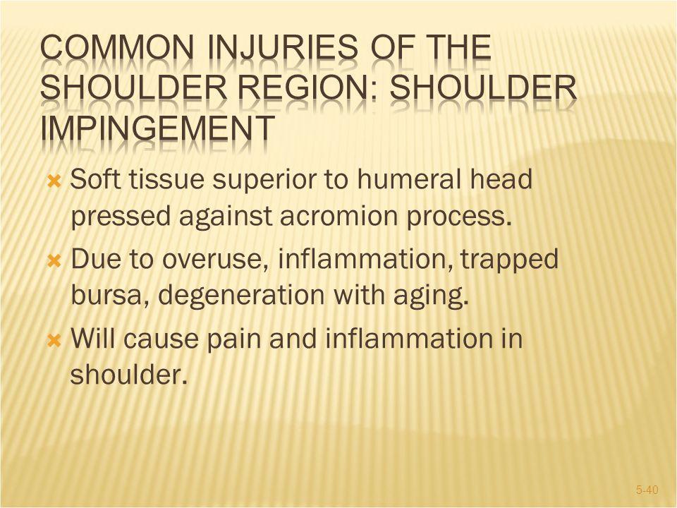 COMMON INJURIES OF THE SHOULDER REGION: Shoulder Impingement
