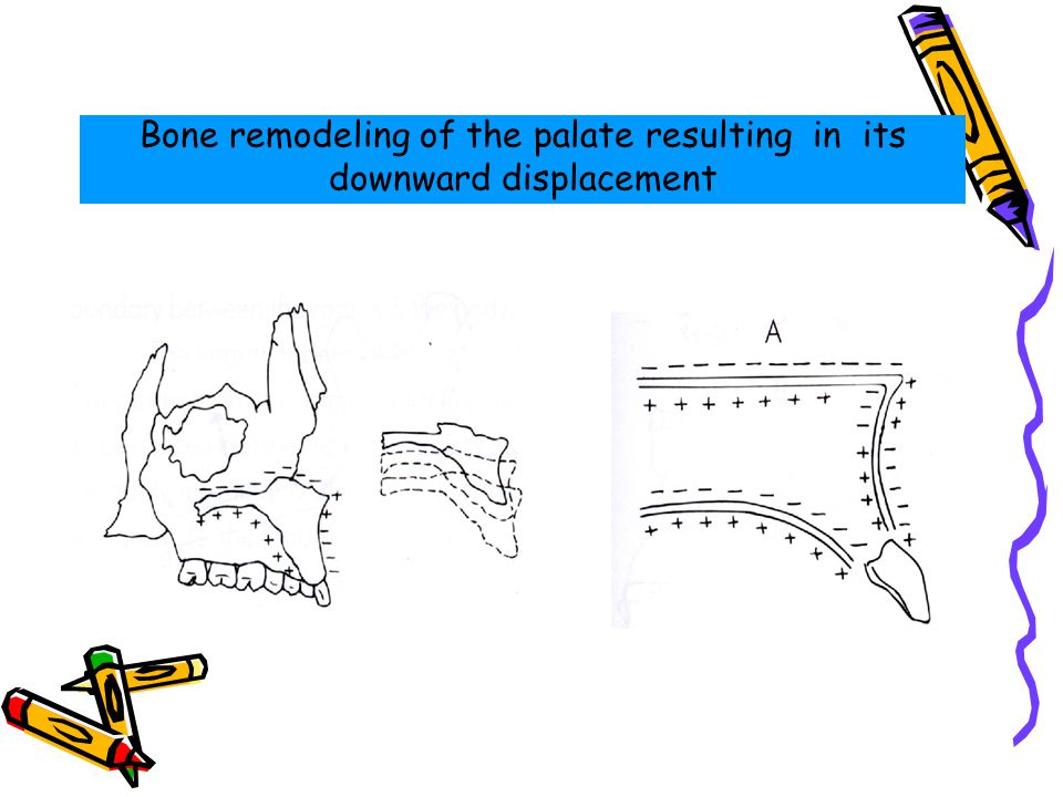 Bone remodeling of the palate resulting in its downward displacement