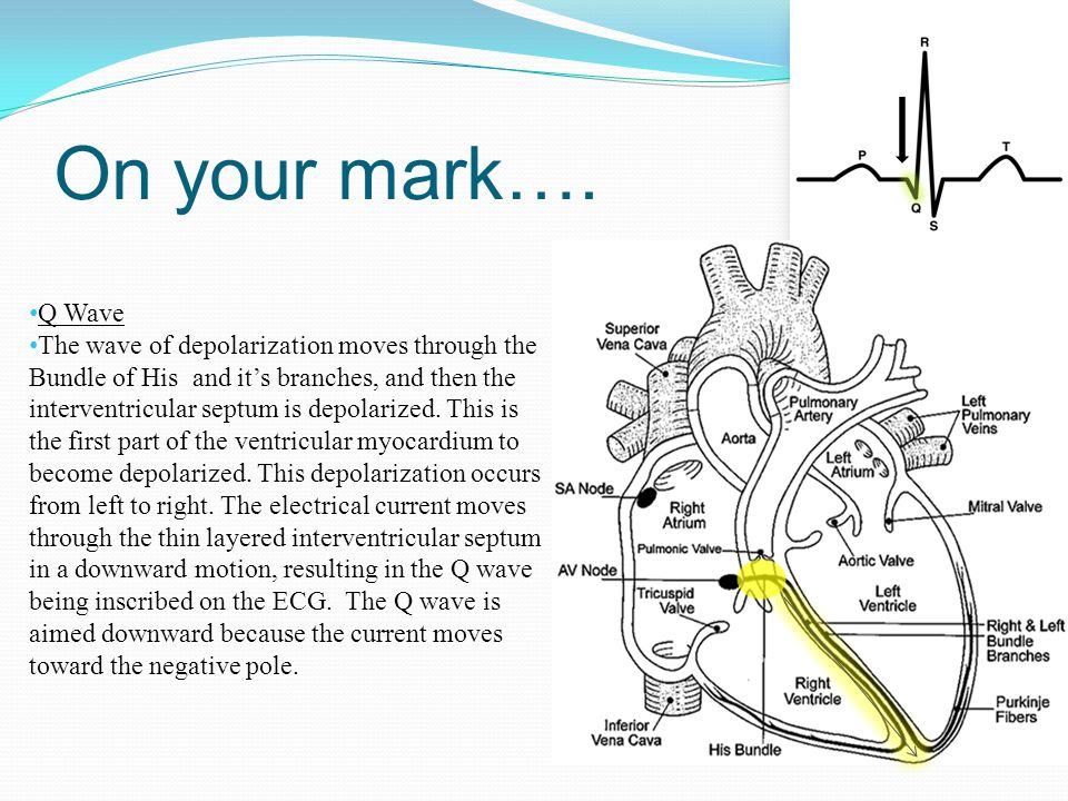 On your mark…. Q Wave.