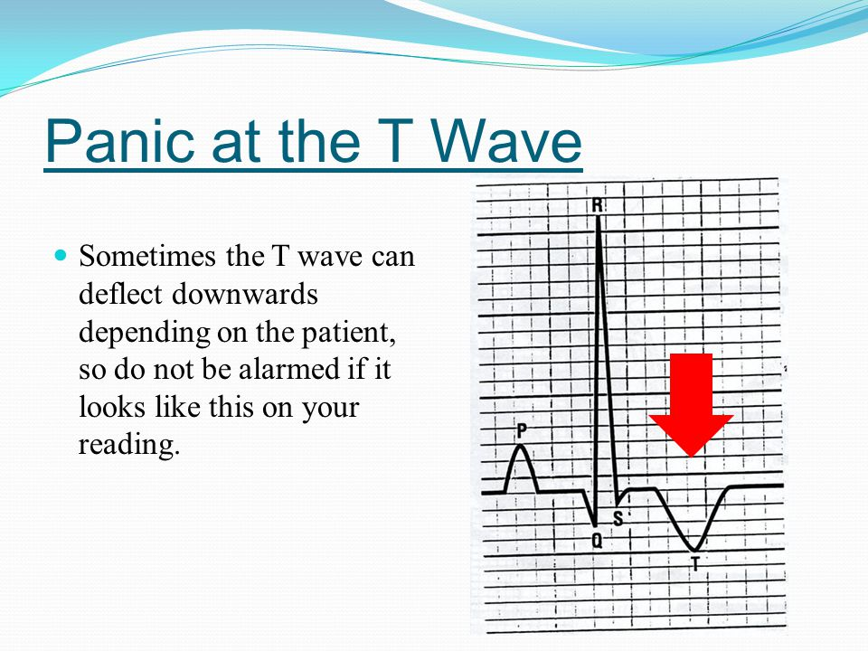 Panic at the T Wave Sometimes the T wave can deflect downwards depending on the patient, so do not be alarmed if it looks like this on your reading.