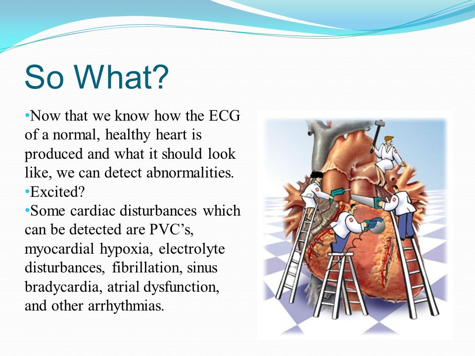 So What Now that we know how the ECG of a normal, healthy heart is produced and what it should look like, we can detect abnormalities.